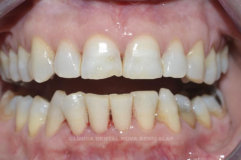 blanmqueamiento-dental-valencia_01