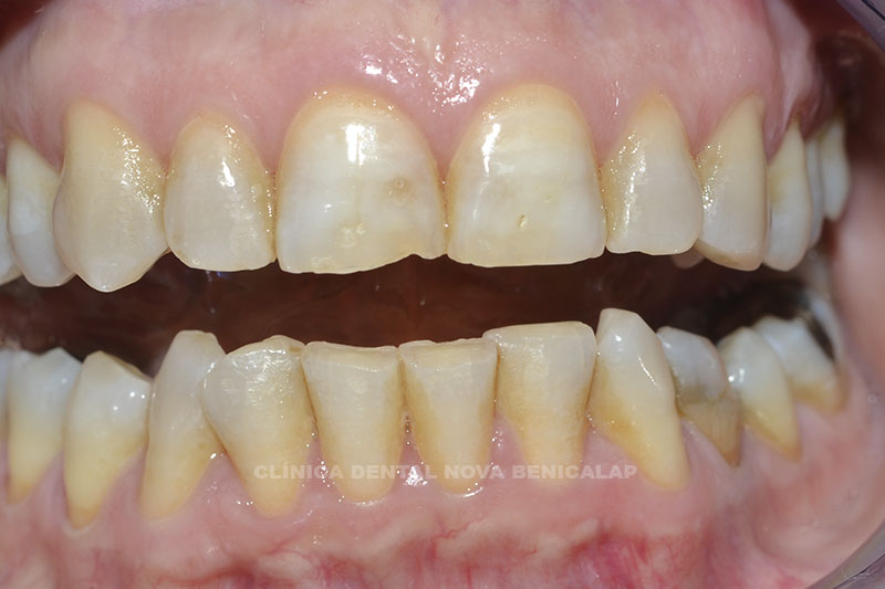 blanmqueamiento-dental-valencia_02