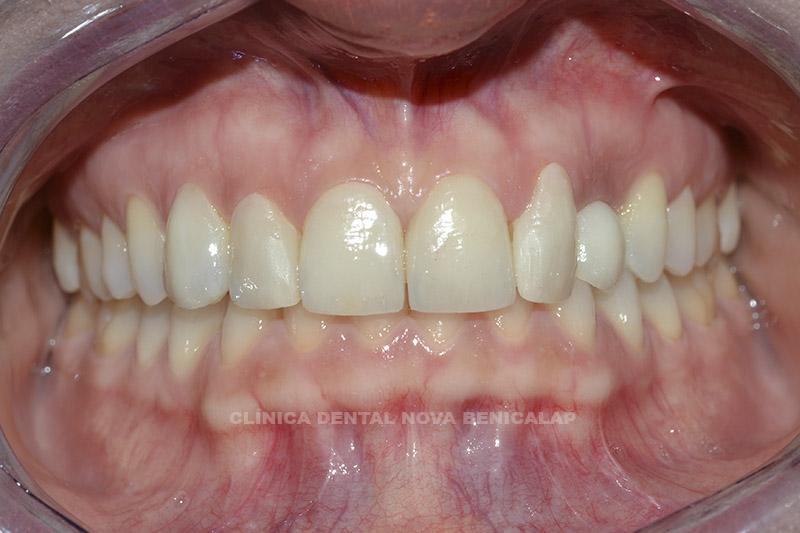 dentista-valencia-2