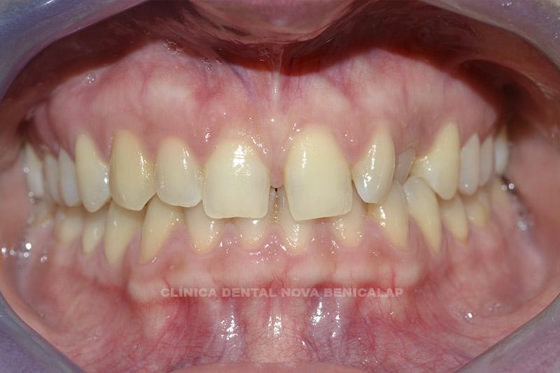 dentista-valencia